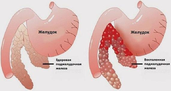 Здоровая и воспаленная поджелудочная железа